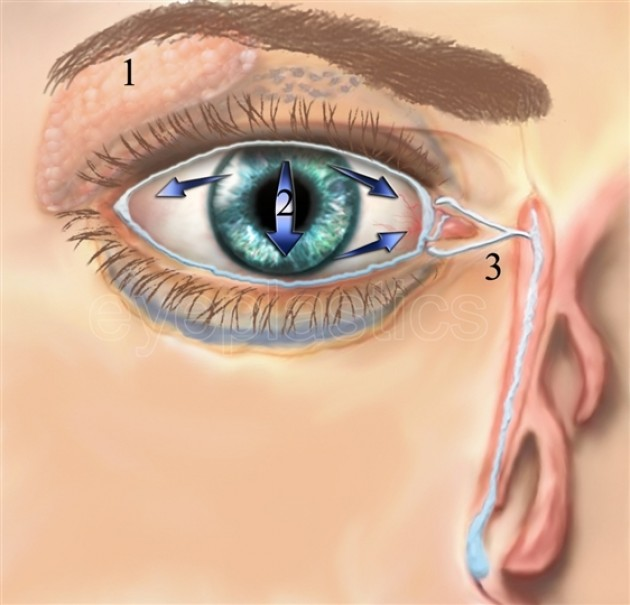 bell's palsy treatment steroid dose