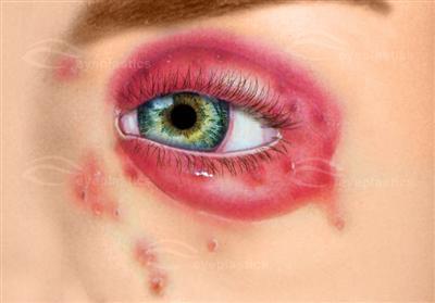 Cosmetic Eyelid Surgery Oculofacial Oculo Facial Surgeon