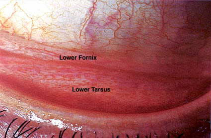 Cosmetic & Reconstructive Facial Eyelid & Orbital surgery @ Eye Plastics.